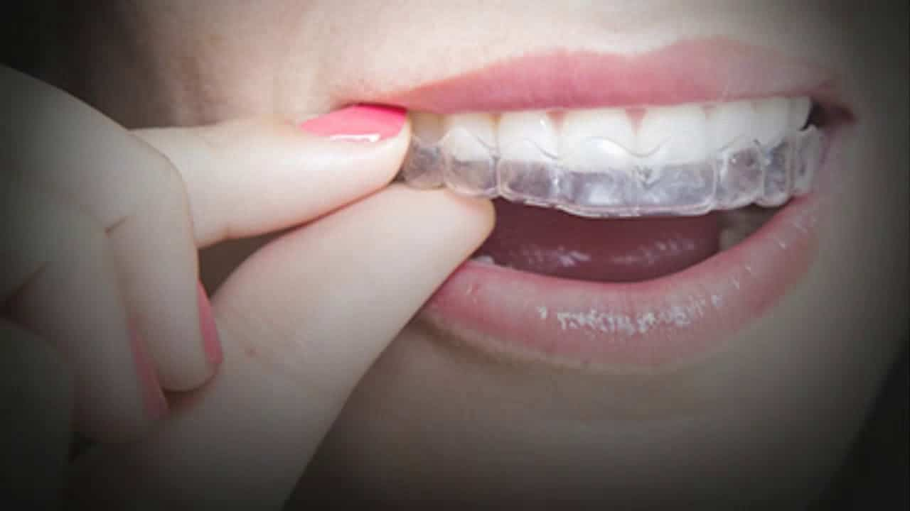 Bite Realignment: How It Impacts Your Teeth and Overall Health