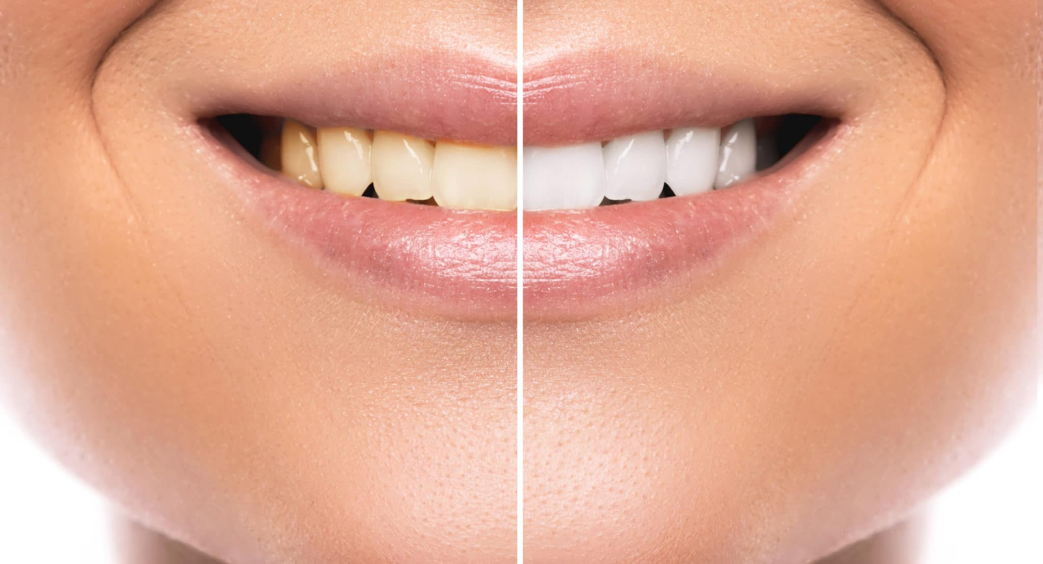 Get the Most Out of Your Whitening Treatment