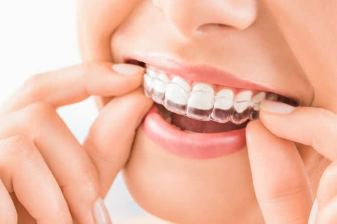 Reasons to Consider Getting Invisalign as an Adult