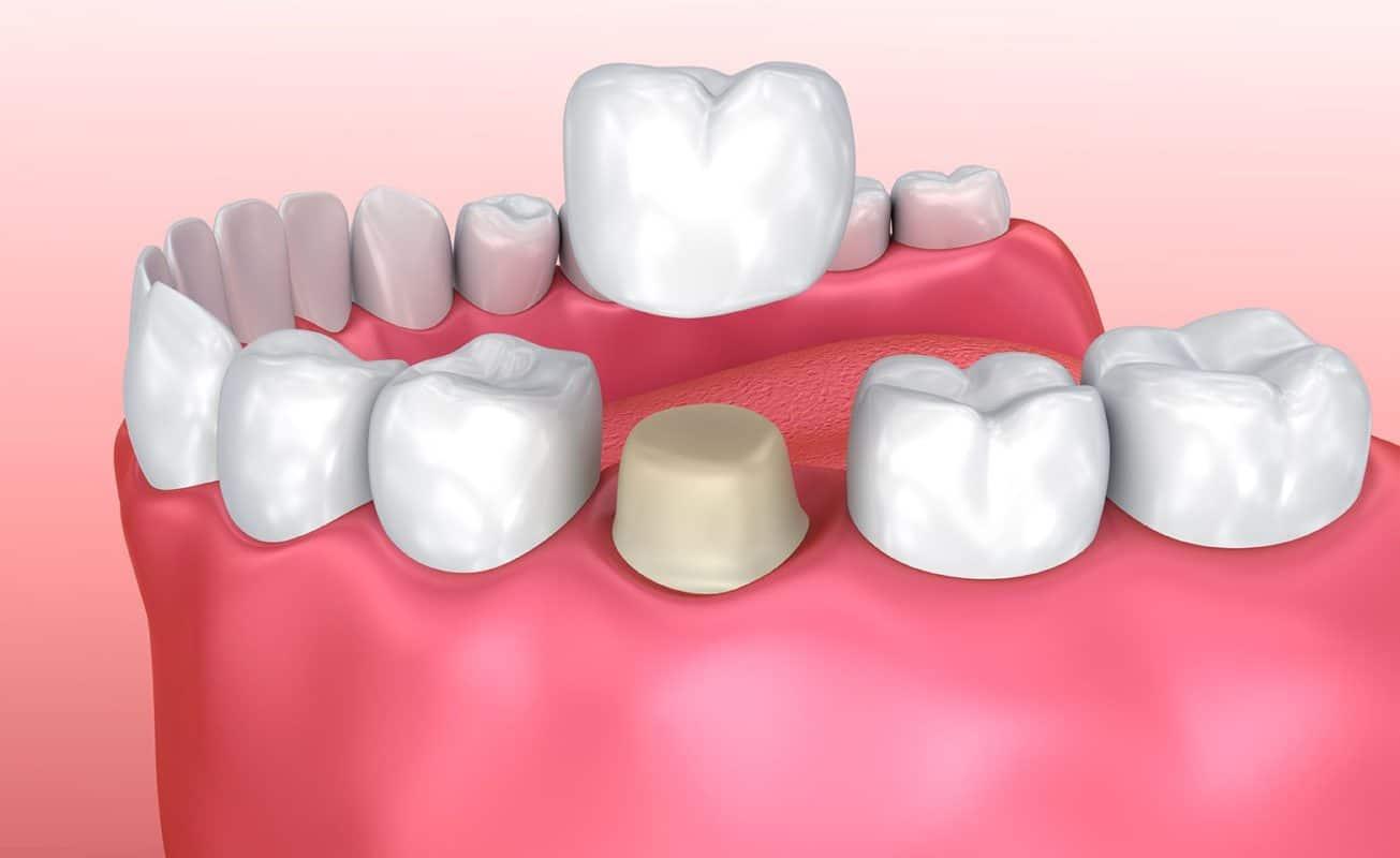 Top 10 Dental Crown FAQs