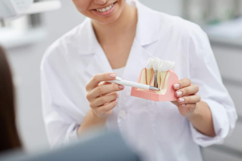 How Much Does A Tooth Implant Cost In Calgary?
