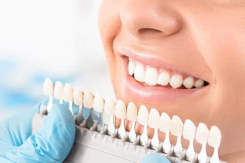 dental crowns calgary